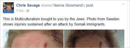 Savage 89 Jews bring multiculturalism assault
