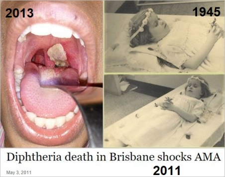 Diphtheria 2 collected