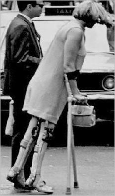 Polio calipers woman